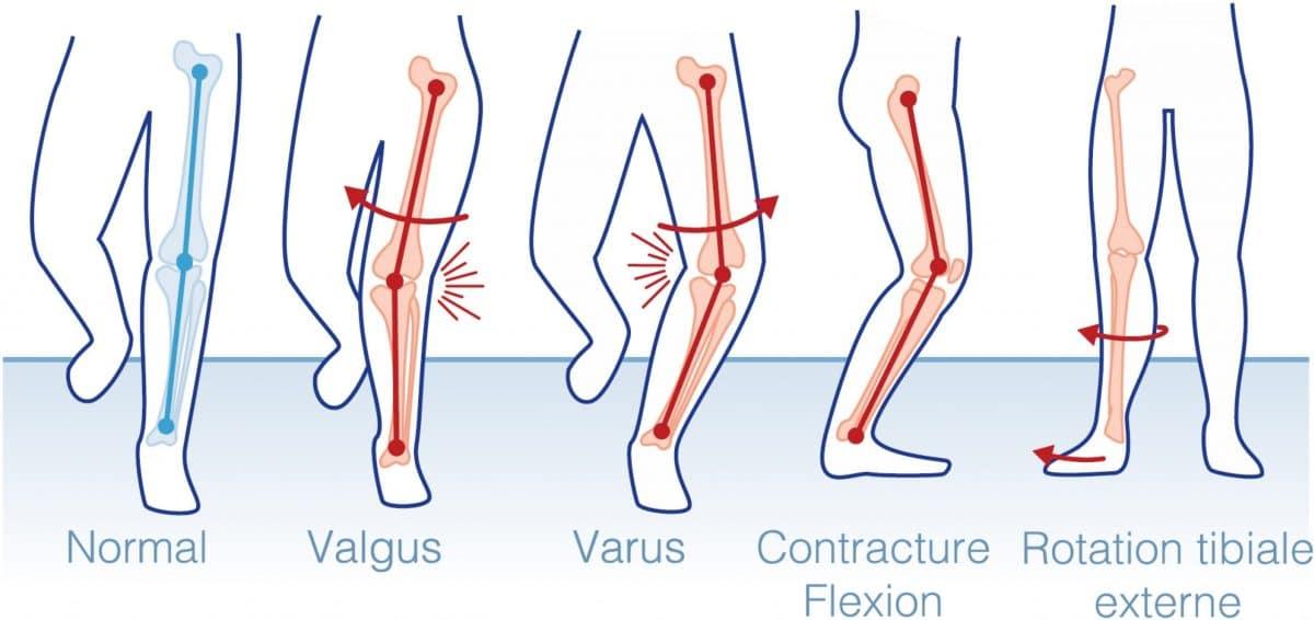 What Is a Knee Kinesiography Examination?   Emovi   KNEEKG™
