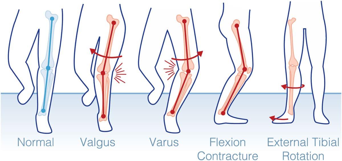 What Is a Knee Kinesiography Examination? | Emovi | KNEEKG™